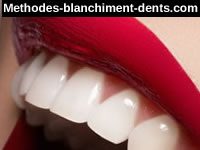 methodes blanchiment dents